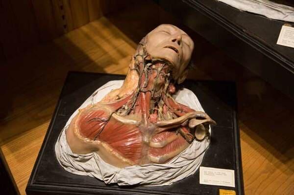 musée anatomie morbide Lyon